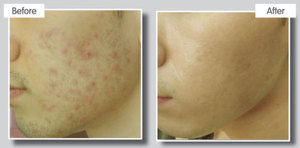 Fractional treatment for Acne scarring