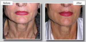 Fractional treatment for skin tightening and wrinkle redution