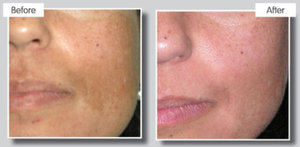 Fractional treatment to improve skin tone and texture