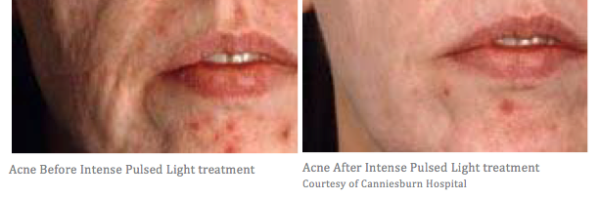 Acne pre and post treatment